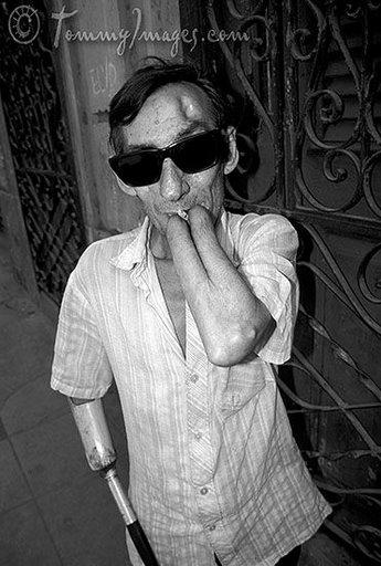 Veterano de la Guerra de Angola, fotografiado en 2001 en La Habana (www.lumika.org)